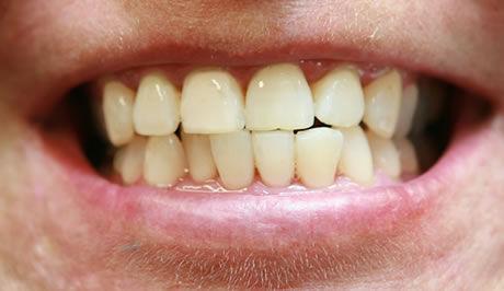 b�len� zub�