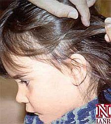 Nejčastěji trpí pedikulózou děti