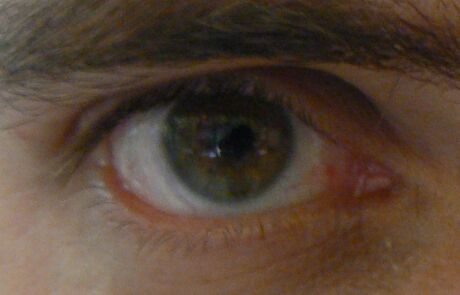 oko s cockou