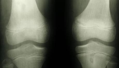 femoropatelární artróza)