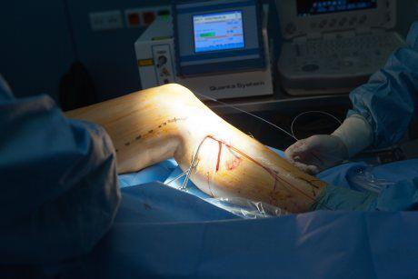 Operace žil