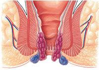 Anální sex po operaci hemoroidů
