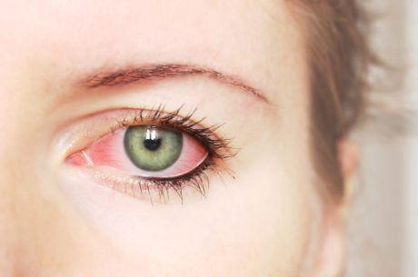 oko zánět