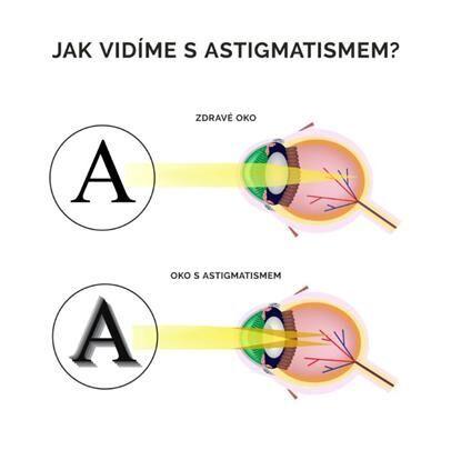 astigmatismus