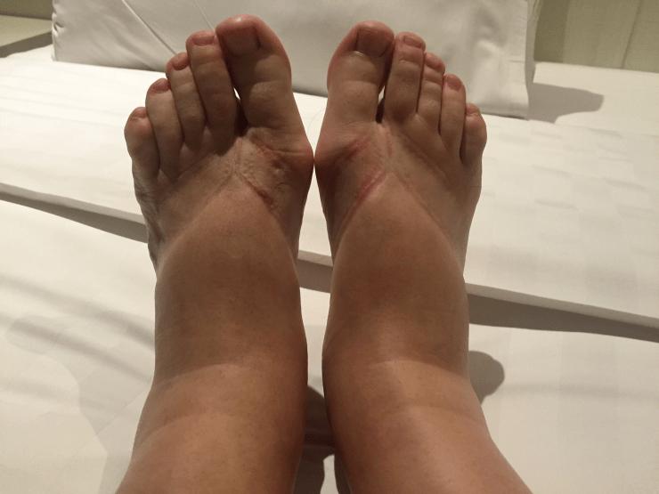 Za oteklé nohy v létě však nemůže jenom teplé počasí. Otoky mají často  další příčiny 4d571f92dd